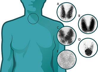Five scintigrams taken from thyroids with different syndromes: A) normal thyroid, B) Graves disease, diffuse increased uptake in both thyroid lobes, C) Plummer's disease, D) Toxic adenoma, E) Thyroiditis. Thyroid scintigraphy.jpg