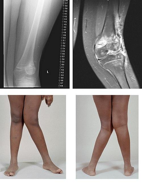 Los dolores en la espalda en el campo de los riñones de la causa del lumbago