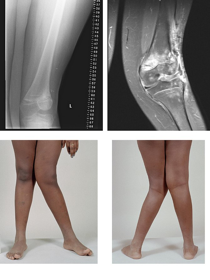 X-rays images of Valgus deformity