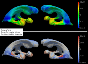 Bayesian estimation of templates in computational anatomy - Image: Xiaoying Tang ADNI template