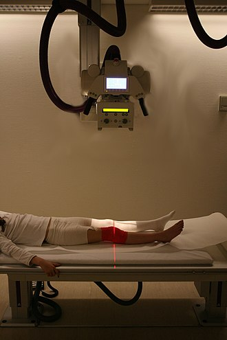 Medical diagnosis - Radiography is an important tool in diagnosis of certain disorders.