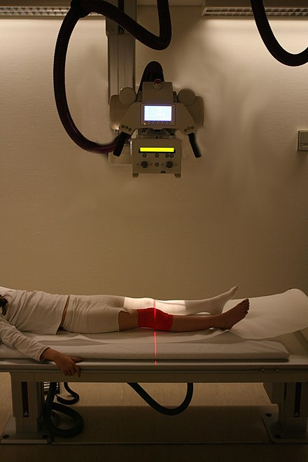 Radiography to identify eventual bone fractures after a knee injury. Xraymachine.JPG