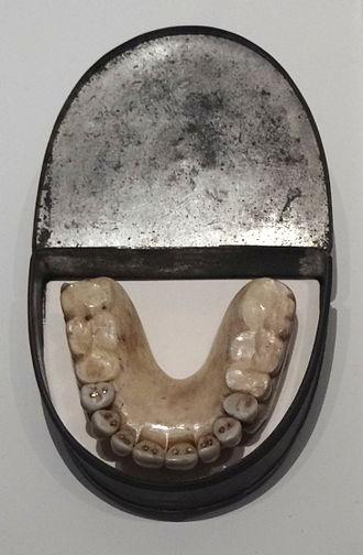 Claudius Ash - Dentures with Waterloo Teeth