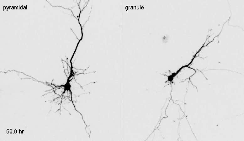 Risultati immagini per granule cells