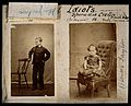 Down's syndrome in a girl and a boy. Two photographs. Wellcome V0030028.jpg