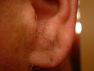 Ear hair - Ear hair protruding from the external auditory meatus in a middle-aged male. Note the fine vellus hair growth on the antitragus and helix.
