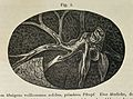 Embolus of the Lung Arteries Wellcome L0033029.jpg