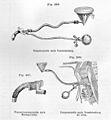 Esmarch & Kowalzig, Chirurgische Technik Wellcome L0029411.jpg