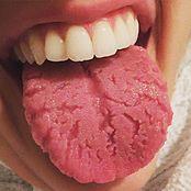 Lengua fisurada - Wikipedia, la enciclopedia libre