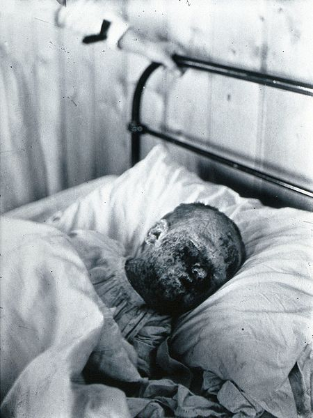 File:Gloucester smallpox epidemic, 1896; Mary Wicklin, aged 4 Wellcome V0031457.jpg