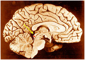 Inferior colliculus - Inferior colliculus (red dot) in human brain, sagittal section.
