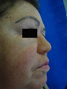 Syphilis (Treponema pallidum)   Obgyn Key  Congenital Syphilis Saddle Nose