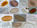 Eggs of various parasites (mainly nematodes) from wild primates