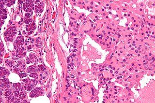 Oncocytoma Human disease