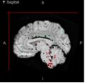 RAI14 Expression Within Human Brain.png
