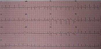 Atrial fibrillation - Wikipedia