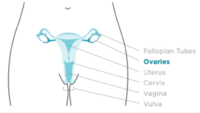 Ovarian cancer - Wikipedia