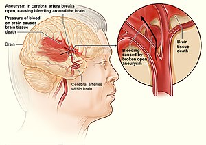 Internal bleeding - Internal bleeding in the brain
