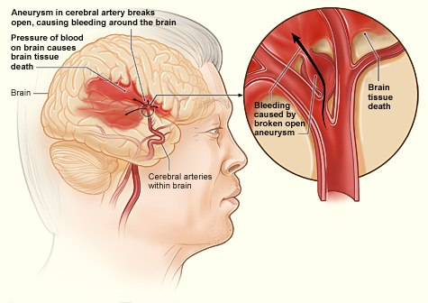 Stroke hemorrhagic