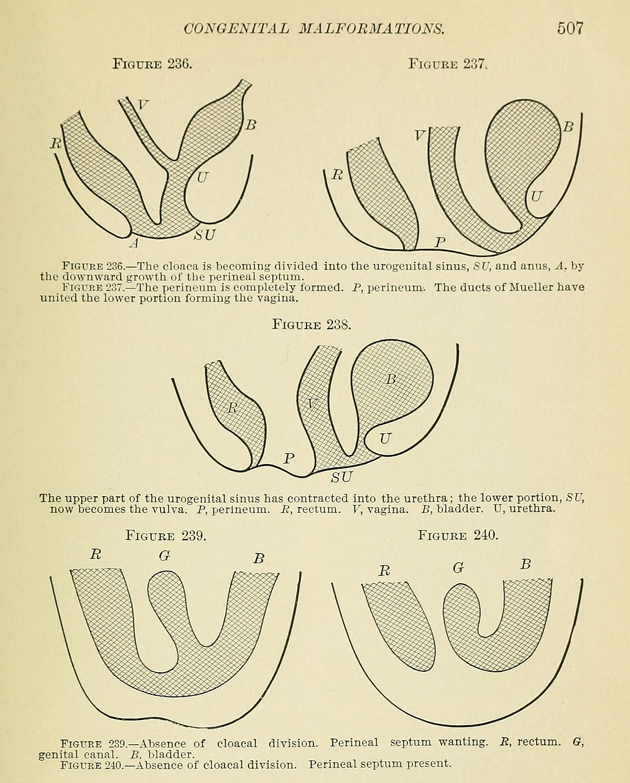 Vaginal Anomalies Wikipedia
