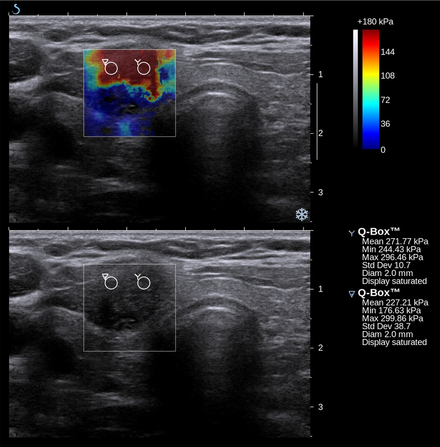 Conventional ultrasonography (lower image) and elastography (supersonic shear imaging; upper image) of papillary thyroid carcinoma, a malignant cancer. The cancer (red) is much stiffer than the healthy tissue. Thyroid SSI Szczepanek-Parulska et al. 2013 papillary thyroid carcinoma elastography.png
