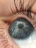 Глаз с корректирующей зрение линзой.jpg