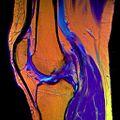 14 Knee MRI T1W TSE R T2W TSE G PDW DR TSE B.jpg