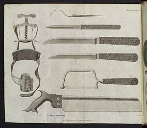 Amputation instruments, c. 1806 Wellcome L0038429.jpg