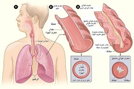 Asthma attack-illustration NIH-ar.jpg