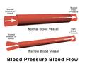 Blausen 0092 BloodPressureFlow.png