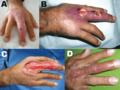 Buruli ulcer hand Peru.png