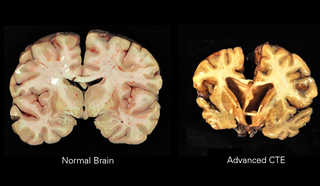 Chronic traumatic encephalopathy Neurodegenerative disease caused by repeated head injuries