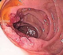 Cancer of the Duodenum and Small Intestine