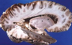 White matter - Human brain right dissected lateral view, showing grey matter (the darker outer parts), and white matter (the inner and prominently whiter parts).