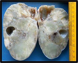 Krukenberg Tumor Wikipedia