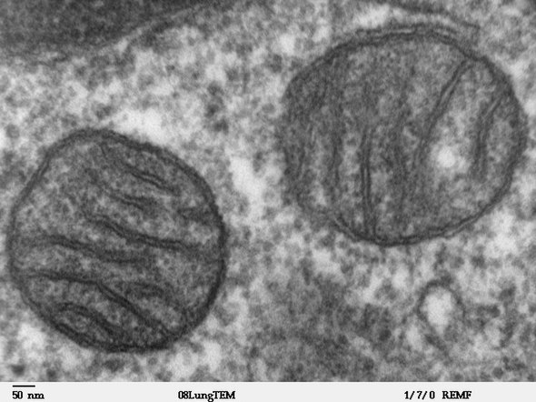 Two mitochondria from mammalian lung tissue displaying their matrix and membranes as shown by electron microscopy Mitochondria, mammalian lung - TEM.jpg