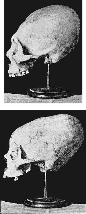 PSM V39 D510 Deformed skulls.jpg