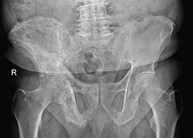 Paget's disease of Right Hip Bone.jpg