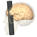 Phineas Gage injury - lateral view.png