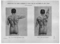 Richer - Anatomie artistique, 2 p. 114.png