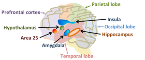 Neuroscience of free will - Some areas of the human brain implicated in mental disorders that might be related to free will. Area 25 refers to Brodmann's area 25, related to long-term depression.