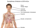 Symptoms of coronavirus disease 2019 in French.png