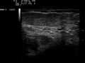 Ultrasound Scan ND 0117115416 1156230.png