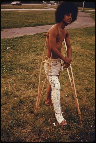 Antonius Mathijsen - Image: YOUNG MAN WITH HIS LEG IN A CAST IN HILAND PARK OF BROOKLYN NEW YORK CITY. THE INNER CITY TODAY IS AN ABSOLUTE... NARA 555914