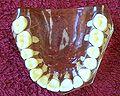 ZahnbogenOK.jpg