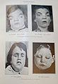 'MENTAL DEFICIENCY' (Amentia), FIFTH EDITION, 1929... IMG 3569 edited-21.jpg
