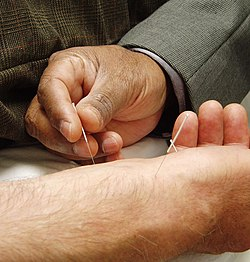 Needles being inserted into a person's skin