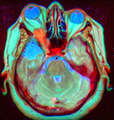 Brain MRI 133441.png