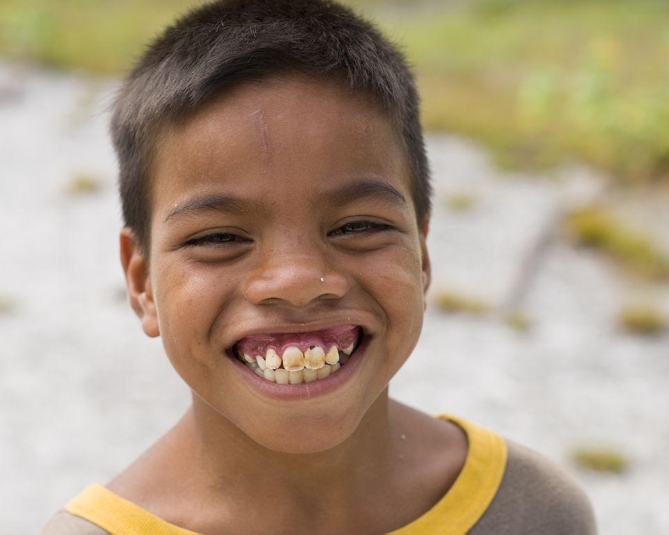 file christmas island kiritimati boy teeth 14337014426 jpg