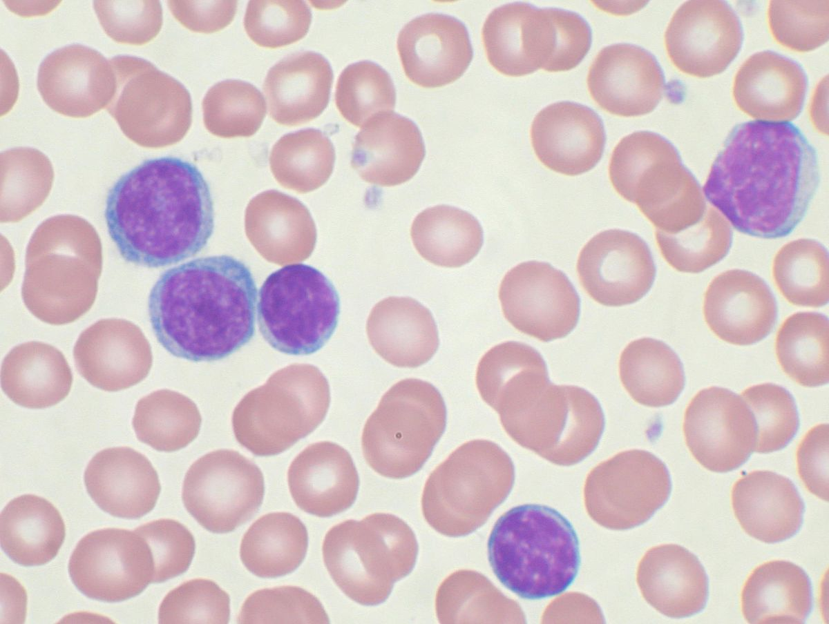 Mature lymphocytes smudge cells